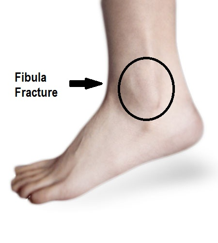 Distal Fibula Stress Fracture · Virtual Fracture Clinic
