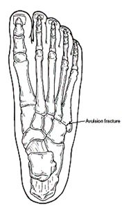 Base of 5th metatarsal fracture · Virtual Fracture Clinic